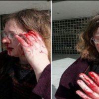 Eugenia Kouniaki, l'avvocatessa che difende i migranti picchiata a sangue dai fascisti di Alba Dorata… Erano una ventina… Perchè fascista è anche sinonimo di vigliacco!