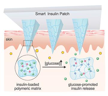 Un cerotto che potrebbe rivoluzionare il trattamento del diabete